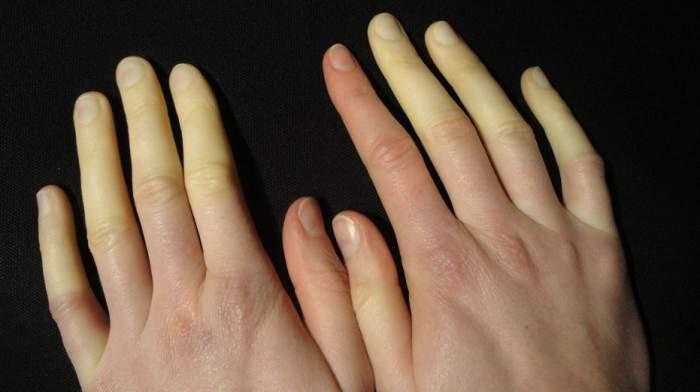 White finger syndrome.