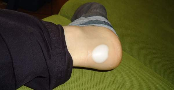 This is how my heel looked with the hydrocolloid bandage on.